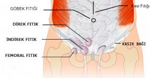 Fıtık Hastalıkları 2 - Op. Dr. Selçuk Kihtir